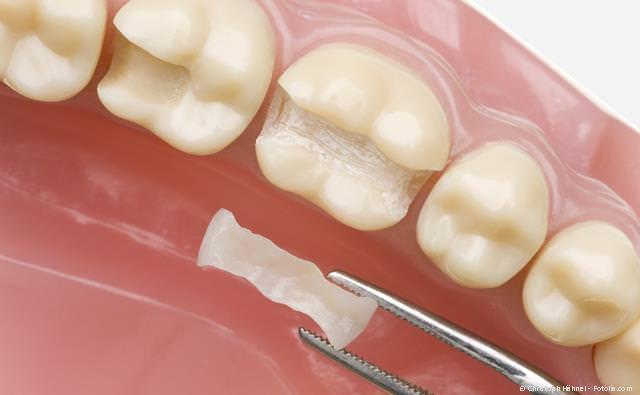 Inlay (Einlagefüllung) aus reiner Keramik: Die schönste, verträglichste und haltbarste Art der Zahnfüllung