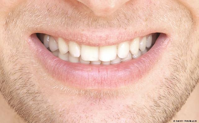 Derselbe Zahn wie oben mit einer