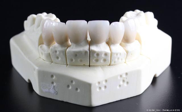 Zahnkronen aus reiner Keramik auf dem Gipsmodell: Ästhetisch und gut körperverträglich