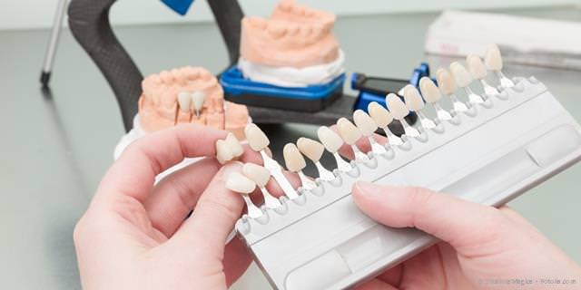 Farbauswahl und ästhetische Zahnersatz-Gestaltung durch den Zahntechniker