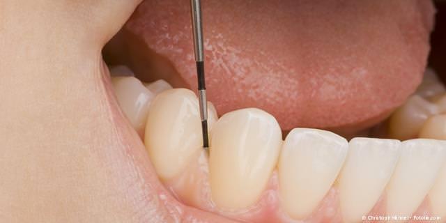 PARODONTITIS-BEHANDLUNG - Vorbeugung gegen Zahnverlust bei Zahnfleischentzündungen und Zahnlockerungen