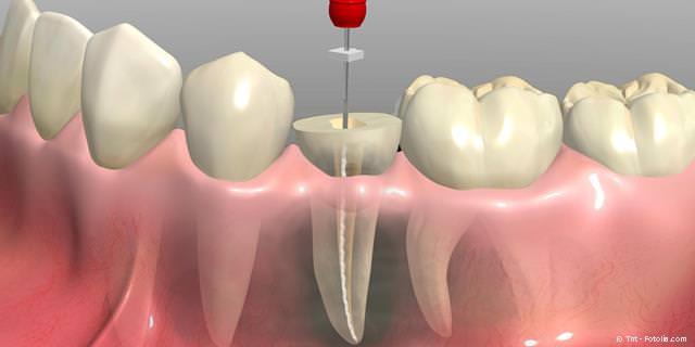 WURZELBEHANDLUNG - Zähne mit modernen Behandlungs-Methoden erhalten und Kosten für Zahnersatz und Implantate sparen