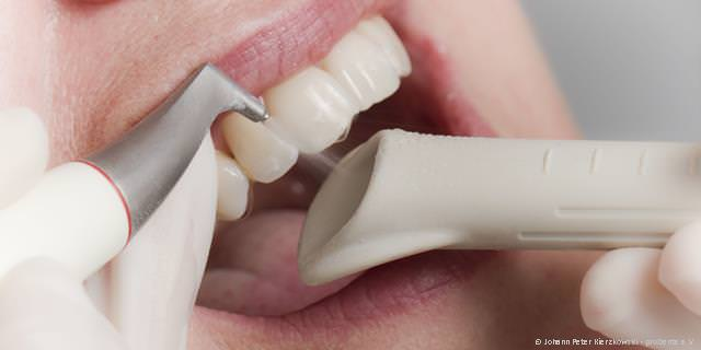 Zahnreinigung mit Pulver-Wasser-Gemisch
