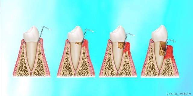 Parodontitis-Behandlung - Zahnverlust vorbeugen